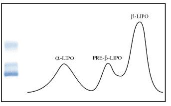 lipo-graphic