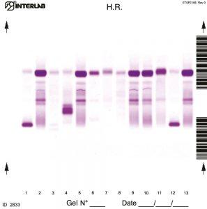 الکتروفورز پروتئین با رزولوشن بالا (ادرار بدون تغلیظ)