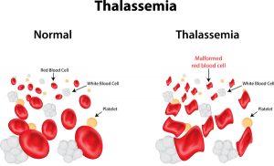 دیاگرام سلولهای نرمال و تالاسمیک