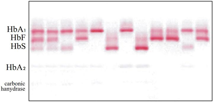 نمونهای از الگوهای الکتروفورتیک هموگلوبین در pH قلیایی