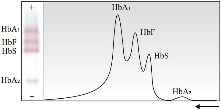 الگو و نمودار محلول کنترل برای الکتروفورز هموگلوبین