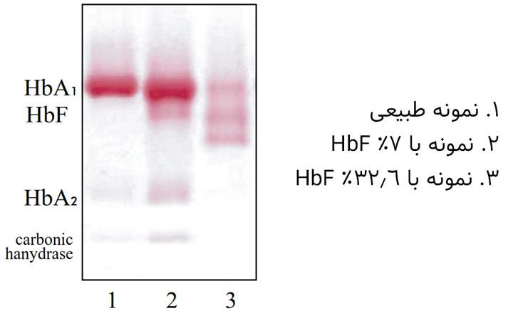 الگوی هموگلوبین F در غلظتهای مختلف