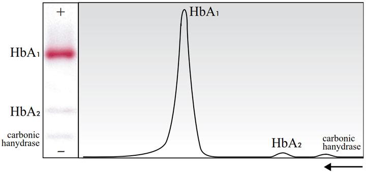 تحرک نسبی الکتروفورتیک هموگلوبین طبیعی انسان روی استات سلولز در pH قلیایی