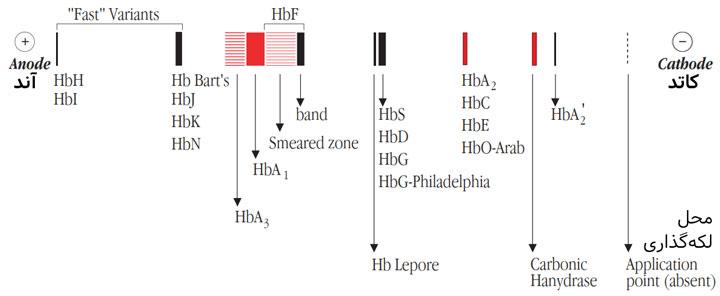حرکت الکتروفورتیک نسبی هموگلوبینهای انسانی طبیعی و غیرطبیعی رو استات سلولز در pH قلیایی