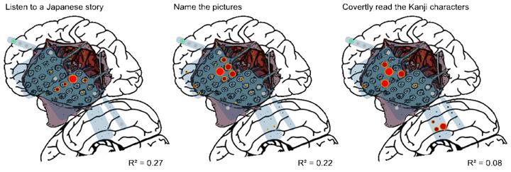 شکل 3- نتیجه نقشه برداری با CortiQ در حین انجام سه نوع فعالیت مرتیط با زبان.