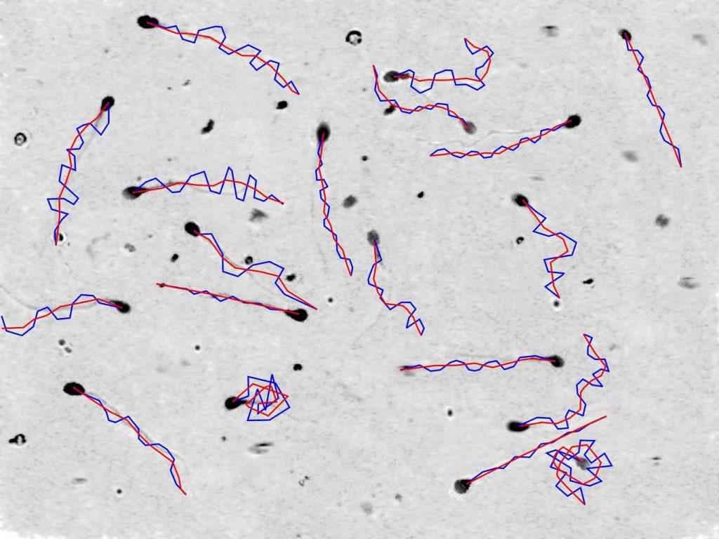 ردیابی اسپرمها توسط سیستم آنالیز اسپرم HFT Casa