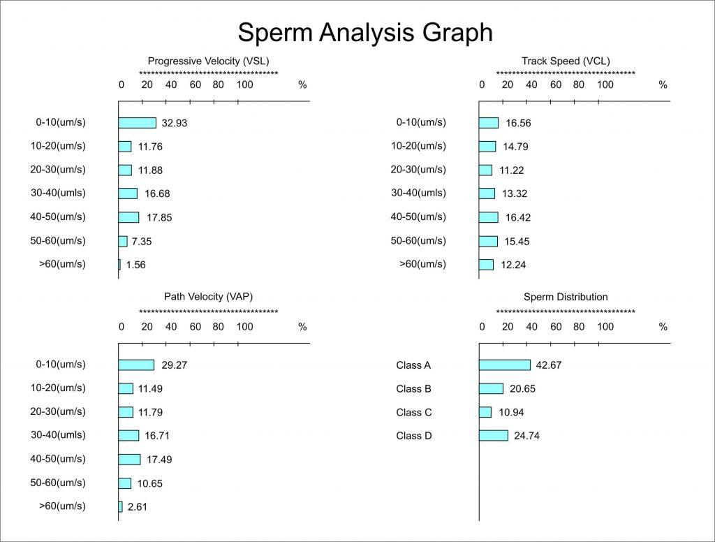 نتایج کلاس بندی سیستم آنالیز اسپرم اتوماتیک HFT CASA