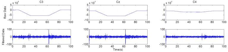 نتایج ثبت همزمان سیگنال EEG و تحریک tDCS